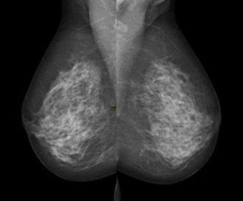 follow up mammogram